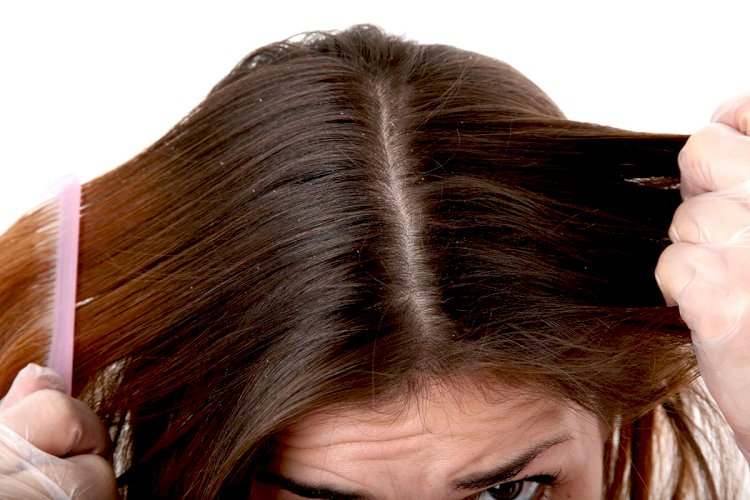Poor hair and scalp health indicate an unhealthy body?