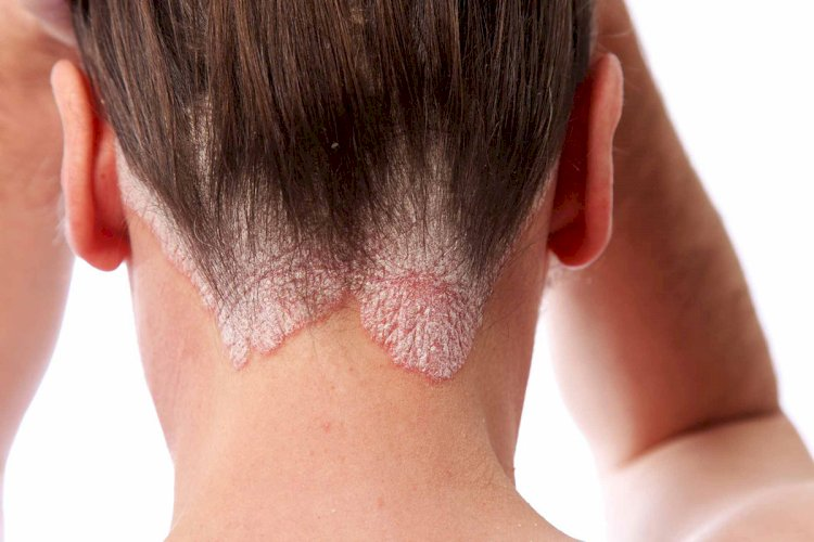 Different Conditions That Affects Your Scalp