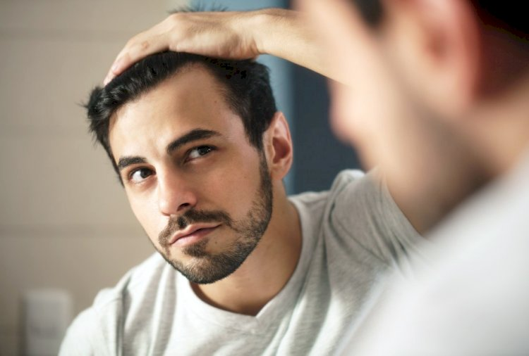 Do You Have A Receding Hairline?