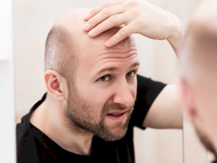 This Is How Close We Are To A Cure For Baldness - Part 2