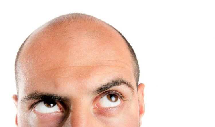 For Hair Loss Treatments, Is There A New Dawn? – Part 1