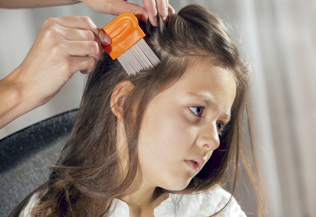 Helping You Get Rid Of Head Lice Are These 5 Simple At-Home Remedies